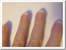 Fingernails[5]